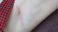 Cicatrice : remèdes naturels pour l'estomper