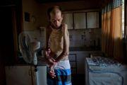 Fabian Tomasi atteint de maladies graves suite à une mauvaise utilisation de pesticides