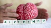 Alzheimer est une maladie neuro-dégenerative