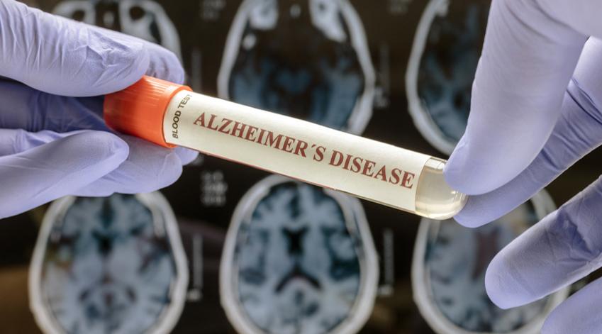 La maladie d'Alzheimer est incurable.