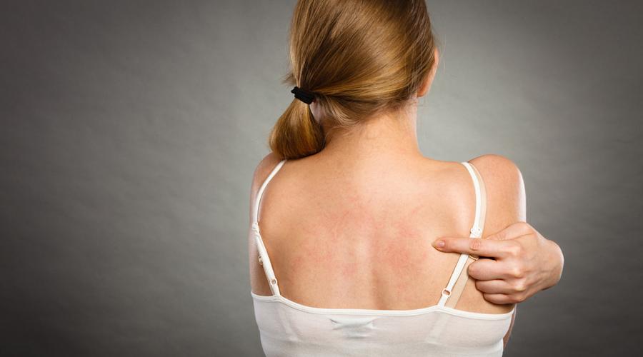 Allergies : bientôt plus de 1000 substances interdites ou limitées dans les vêtements ?