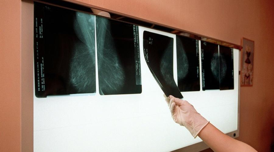 Cancer du sein : ces polluants qui augmentent le risque de métastases