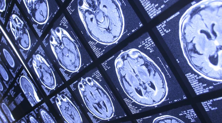 IRM cerveau