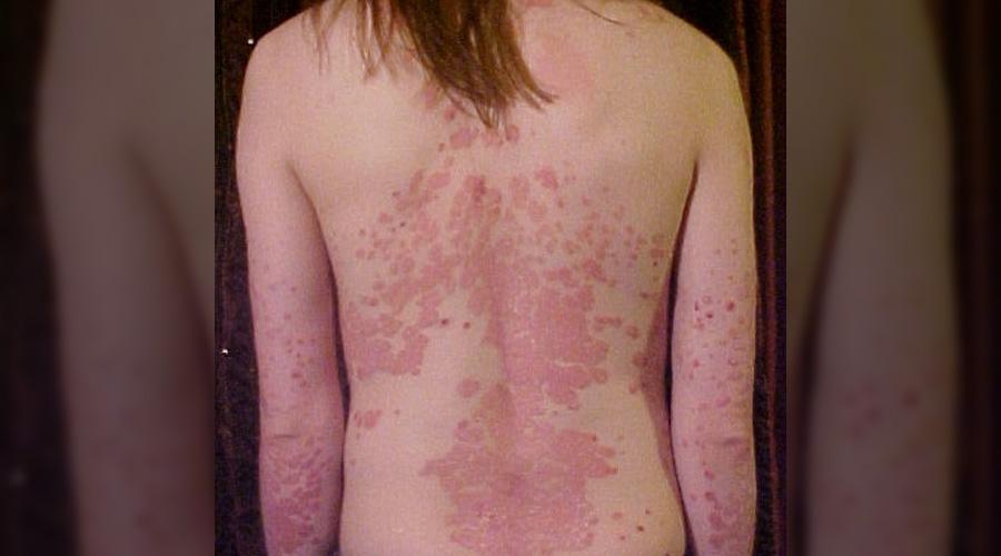 Une révolution naturelle dans le traitement du psoriasis